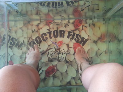 doctor-fish-turc